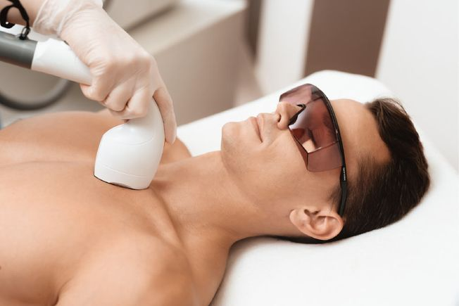 man getting a laser hair removal